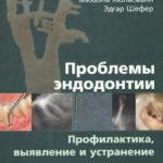 Скачать Проблемы эндодонтии Михаэль Хюльсманн