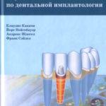 Скачать Справочник по дентальной имплантологии Какачи