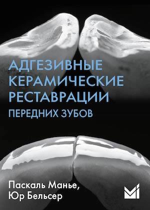 Скачать Адгезивные керамические реставрации передних зубов Манье
