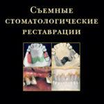 Скачать Съемные стоматологические реставрации Маркскорс